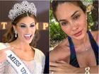 Đồi mồi phủ kín mặt - ngực - lưng nhưng cách Hoa hậu Hoàn vũ 2013 yêu thương bản thân khiến ai nấy đều ngưỡng mộ