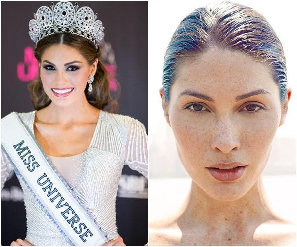 Đồi mồi phủ kín mặt - ngực - lưng nhưng cách Hoa hậu Hoàn vũ 2013 yêu thương bản thân khiến ai nấy đều ngưỡng mộ-4