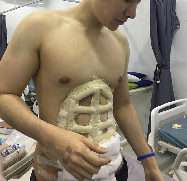 Chấp nhận đau đớn để phẫu thuật bụng 6 múi, thành quả ở bức ảnh cuối cùng khiến ai cũng choáng-1