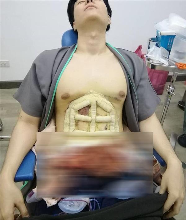 Chấp nhận đau đớn để phẫu thuật bụng 6 múi, thành quả ở bức ảnh cuối cùng khiến ai cũng choáng-2