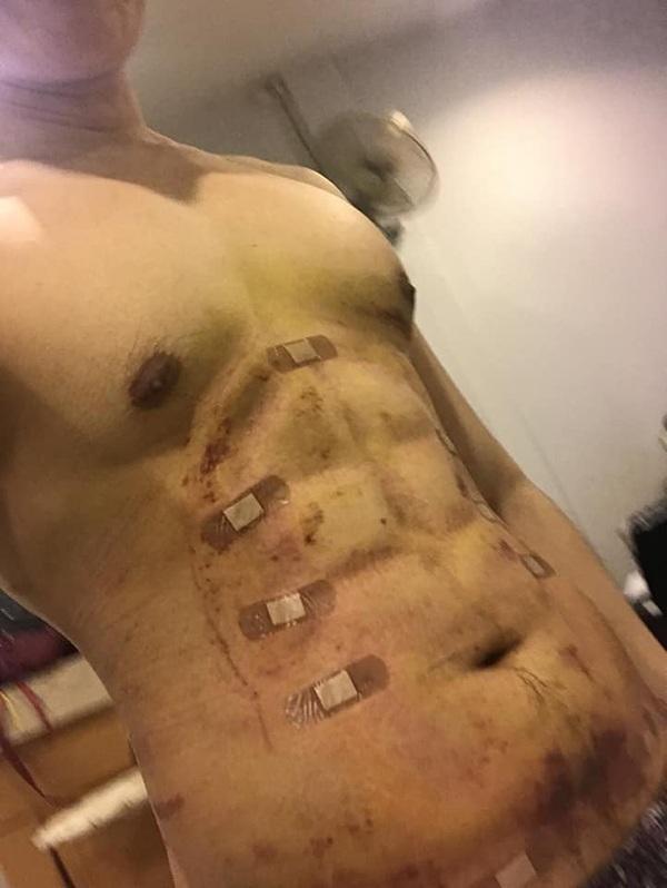 Chấp nhận đau đớn để phẫu thuật bụng 6 múi, thành quả ở bức ảnh cuối cùng khiến ai cũng choáng-3
