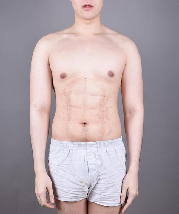 Chấp nhận đau đớn để phẫu thuật bụng 6 múi, thành quả ở bức ảnh cuối cùng khiến ai cũng choáng-5
