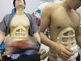 Chấp nhận đau đớn để phẫu thuật bụng 6 múi, thành quả ở bức ảnh cuối cùng khiến ai cũng choáng