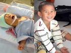 Bị văng ra khỏi bụng mẹ, mất một chân sau vụ tai nạn thảm khốc, thai nhi ở An Giang thay đổi ra sao sau 3 năm?