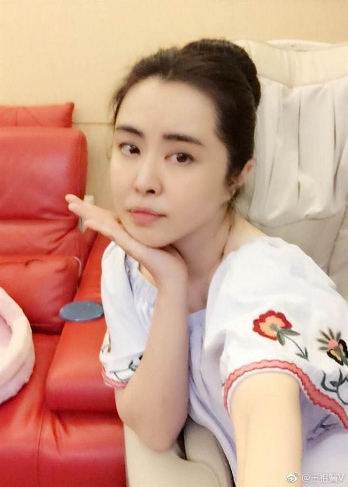 Ngọc nữ số 1 Hong Kong Vương Tổ Hiền: nhan sắc tỏa sáng ngay cả trên giường bệnh-10