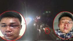 Clip: Chỉ vì bấm còi xin đường, 2 tài xế container bị nhóm côn đồ đánh bầm dập, mặt mày be bét máu