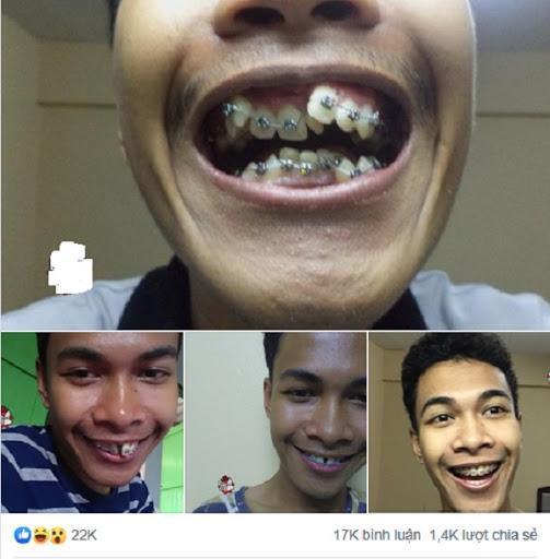 Ngỡ ngàng trước sự lột xác vi diệu nhờ niềng răng, dung mạo thay đổi 180 độ-1