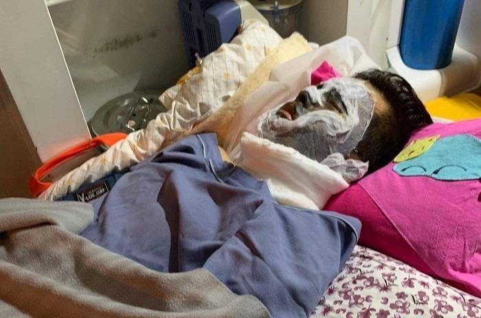Việt kiều bị tạt axit, cắt gân chân: Công bố điểm nhận dạng 2 nghi phạm-1