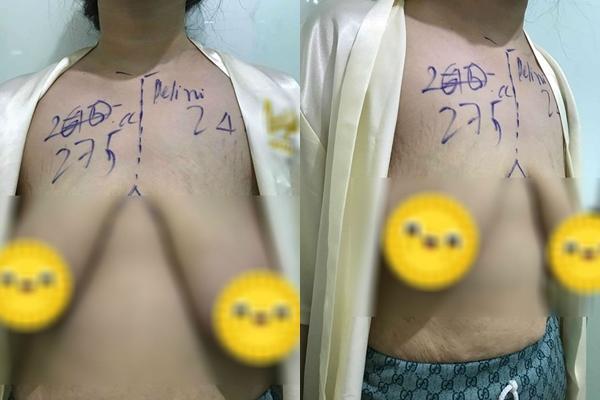 Mẹ trẻ gây ám ảnh với bộ ngực chảy xệ, da bụng rạn nứt tung tóe sau sinh-1
