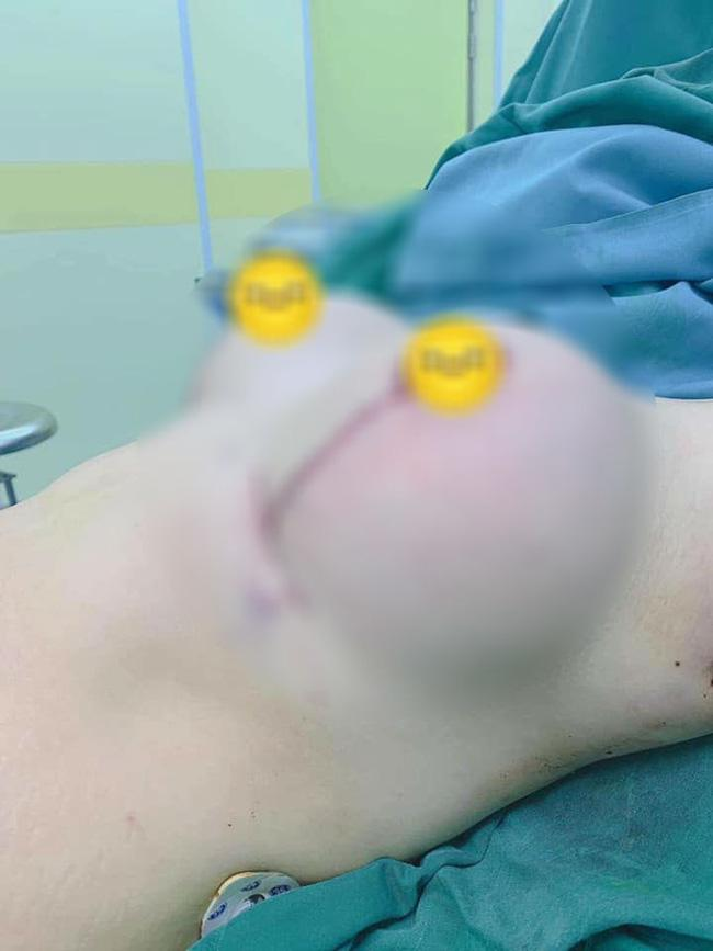 Mẹ trẻ gây ám ảnh với bộ ngực chảy xệ, da bụng rạn nứt tung tóe sau sinh-2
