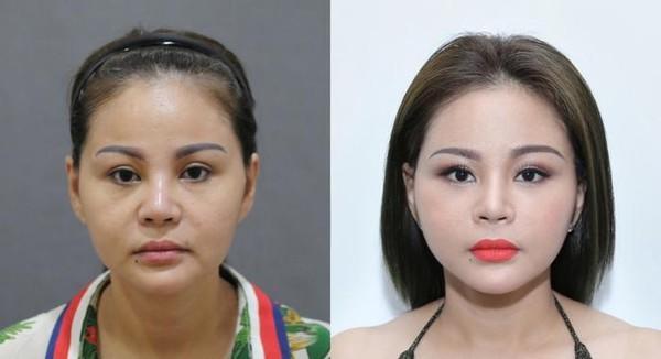 Từng nghiện trùng tu nhan sắc, dung mạo của hai nữ hoàng dao kéo showbiz Việt hiện thế nào?-4