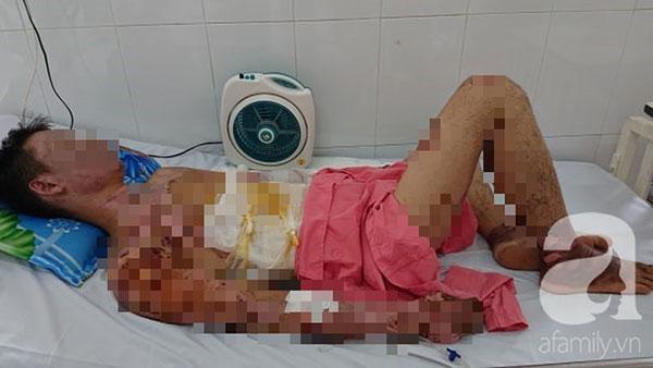 Thương tâm: Chuẩn bị ăn cơm thì nổ bình gas, cả gia đình 4 người bỏng nặng-1