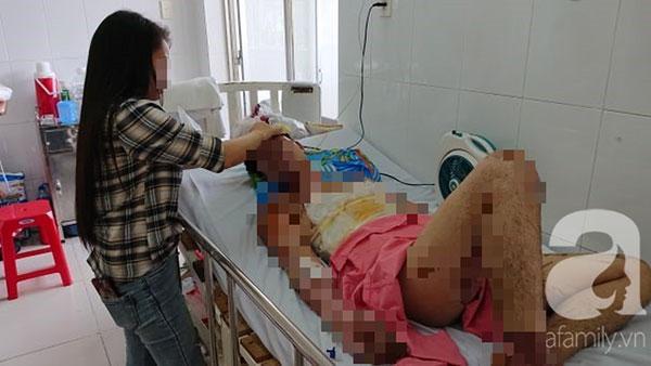 Thương tâm: Chuẩn bị ăn cơm thì nổ bình gas, cả gia đình 4 người bỏng nặng-2