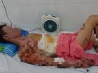 Thương tâm: Chuẩn bị ăn cơm thì nổ bình gas, cả gia đình 4 người bỏng nặng