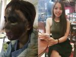 Hành trình hồi sinh gương mặt xinh đẹp cho cô gái bị thiếu úy tạt axit-6