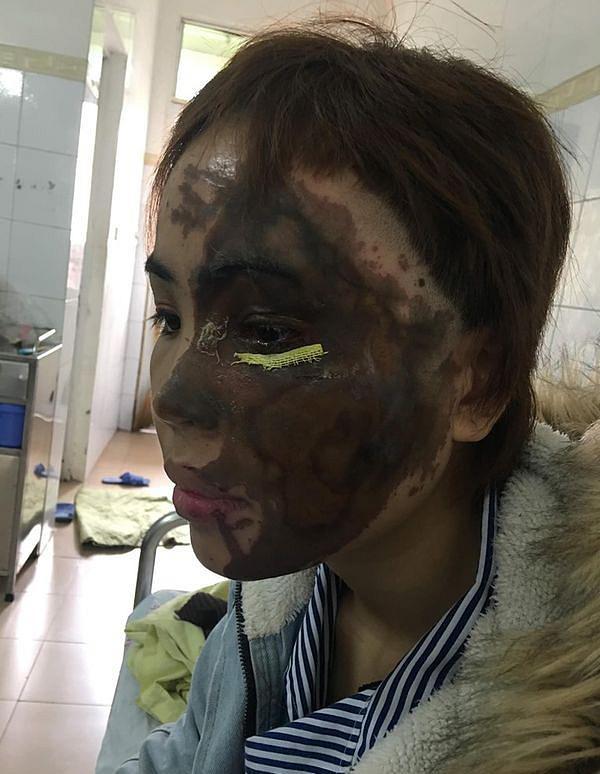 Hành trình hồi sinh gương mặt xinh đẹp cho cô gái bị thiếu úy tạt axit-2