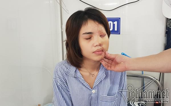 Hành trình hồi sinh gương mặt xinh đẹp cho cô gái bị thiếu úy tạt axit-4