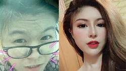 Mạng xã hội Việt dậy sóng với màn lột xác những tưởng chỉ có trên phim của cô gái trẻ sau thẩm mỹ