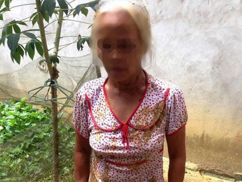 Mâu thuẫn đất đai, người phụ nữ tố bị 2 thanh niên nhét chất thải bẩn vào miệng-1