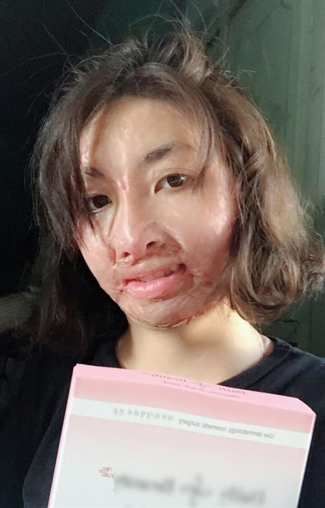 Cô gái Yên Bái bị chồng MC tẩm xăng đốt 3 năm trước giờ ra sao?-3