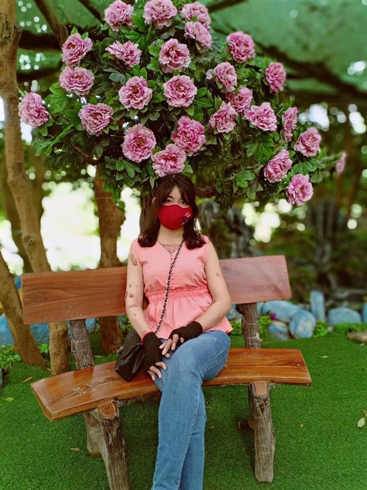 Cô gái Yên Bái bị chồng MC tẩm xăng đốt 3 năm trước giờ ra sao?-5