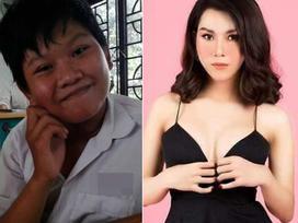 Công khai ảnh phẫu thuật chuyển giới, 9X Sài Gòn khiến người xem bất ngờ với màn lột xác xuất sắc