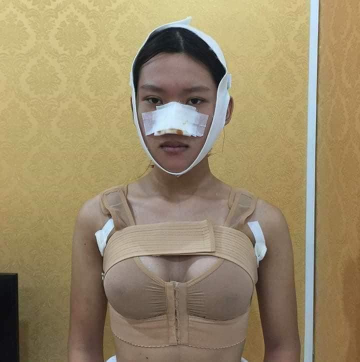 Công khai ảnh phẫu thuật chuyển giới, 9X Sài Gòn khiến người xem bất ngờ với màn lột xác xuất sắc-6