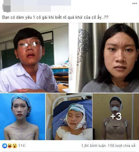 Công khai ảnh phẫu thuật chuyển giới, 9X Sài Gòn khiến người xem bất ngờ với màn lột xác xuất sắc-1