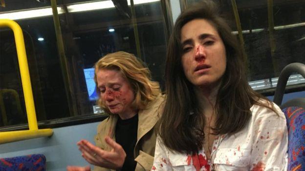 Cặp đôi đồng tính bị tấn công trên xe buýt vì không chịu hôn nhau-1