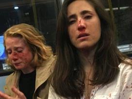 Cặp đôi đồng tính bị tấn công trên xe buýt vì không chịu hôn nhau