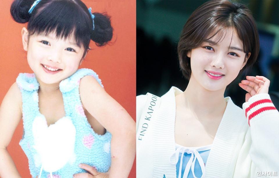 Hình ảnh ngày ấy - bây giờ của Kim Yoo Jung bất ngờ thu hút sự chú ý vì quá đẹp-1