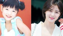Hình ảnh 'ngày ấy - bây giờ' của Kim Yoo Jung bất ngờ thu hút sự chú ý vì quá đẹp