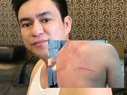 Sắp xét xử vụ bác sĩ Chiêm Quốc Thái bị vợ cũ thuê giang hồ chém