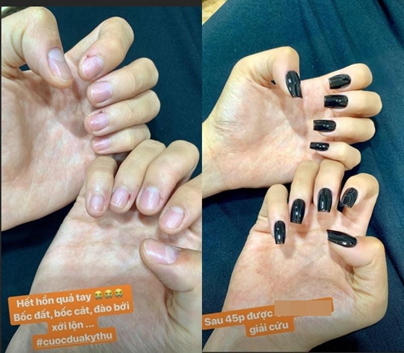 Hoa hậu Kỳ Duyên khiến fans xót xa với bàn tay bong tróc tơi tả vì bốc đất-3