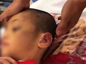 Dư luận phẫn nộ, truy tìm hai phụ nữ hành hạ con đến đa chấn thương