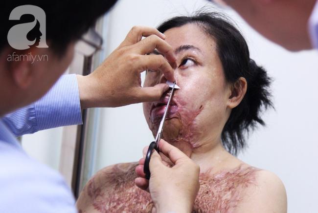 Vùng mặt bệnh nhân bị ảnh hưởng nghiêm trọng.