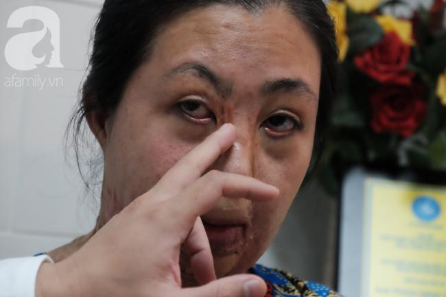 Người mẹ trẻ mong cải thiện gương mặt để con đỡ sợ khi nhìn mình.