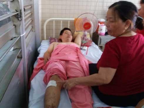 Bệnh nhân gãy đốt sống ngực bị khoan nhầm cẳng chân-1