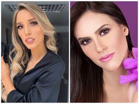 Dao kéo 'nát mặt', thí sinh Hoa hậu Venezuela 2019 vẫn bị chê như đàn ông, giống người chuyển giới