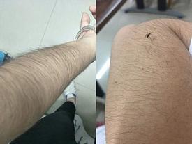 Các thiếu nữ Trung Quốc thi nhau khoe lông tay, lông chân dày đến mức muỗi cũng không đốt nổi