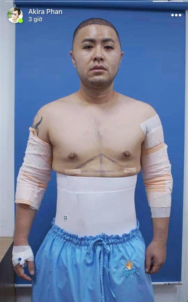 Hoàng tử Mùa đông không lạnh Akira Phan sau phẫu thuật để lấy lại phong độ giờ ra sao?-5