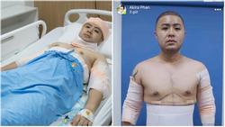 Hoàng tử 'Mùa đông không lạnh' Akira Phan sau phẫu thuật để lấy lại phong độ giờ ra sao?