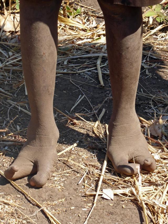 Bộ lạc chân đà điểu kỳ lạ ở châu Phi-3