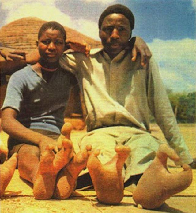 Bộ lạc chân đà điểu kỳ lạ ở châu Phi-5