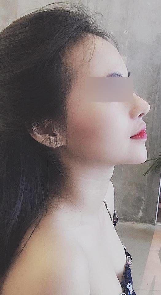 Cô gái Việt nâng mũi sửa cằm cho đẹp ai ngờ đổi vận, thăng hạng cả tình lẫn tiền-4