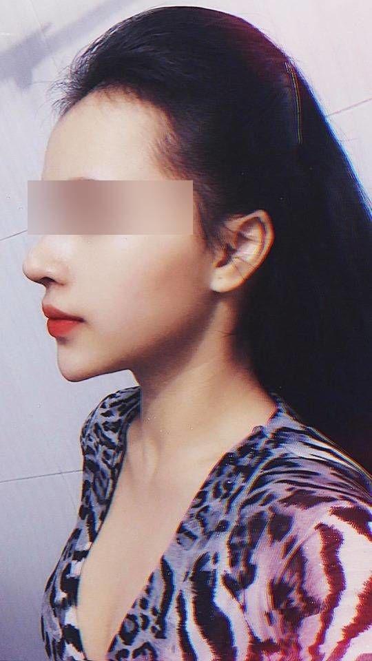 Cô gái Việt nâng mũi sửa cằm cho đẹp ai ngờ đổi vận, thăng hạng cả tình lẫn tiền-5
