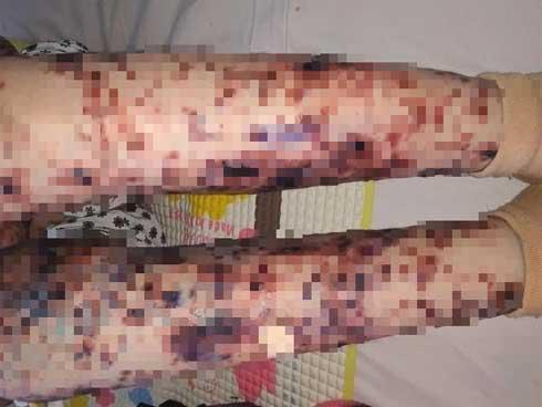 Bé gái Việt mang căn bệnh hiếm, cả thế giới chỉ có 38 trẻ mắc-1