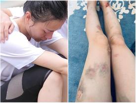 Phương Oanh khoe đôi chân bầm tím, sứt cả mảng da cực kỳ đáng sợ