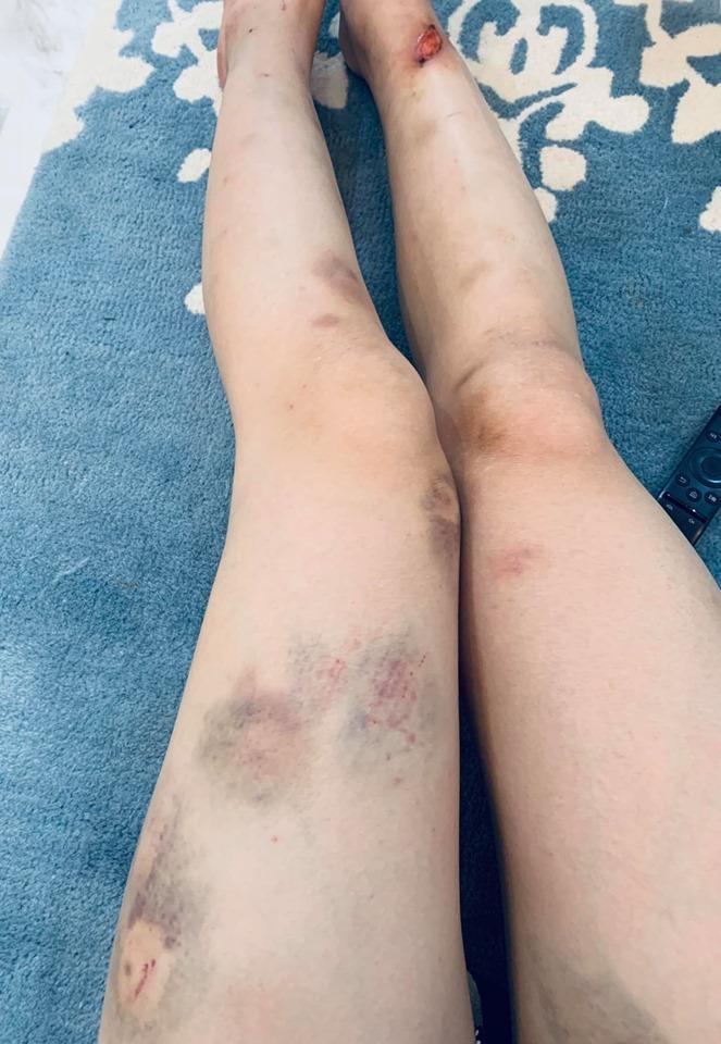 Phương Oanh khoe đôi chân bầm tím, sứt cả mảng da cực kỳ đáng sợ-3