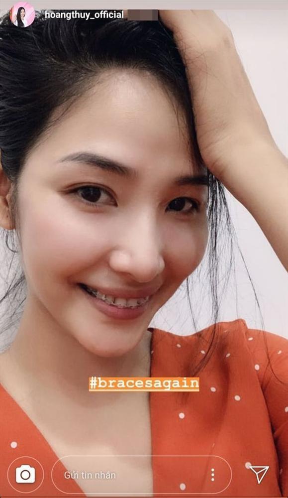 Bản tin Hoa hậu Hoàn vũ 29/6: Bị chê cười xấu, Hoàng Thùy niềng răng cấp tốc để thi đấu với cực phẩm mỹ nhân-1
